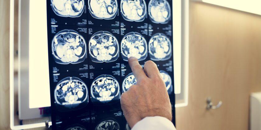 8° Convegno su Cognitività e malattie neurologiche